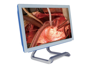 New Medical Full HD Monitor from IEI – MMS-21C